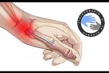 Como aliviar la tendinitis de Quervain / Como aliviar la tendinitis de Quervain