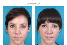 AvaMD Before/After photos / These are before/after photos from some of our patients here at AvaMD! / by Dr. Ava Shamban