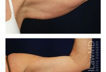 Arm Lift at Michael Law MD Aesthetic Plastic Surgery