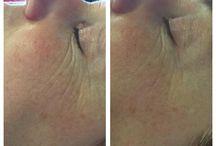 Reviderm Microdermabrasie / Microdermabrasie is voor iedereen  Met microdermabrasie kunnen veel huidtoestanden worden aangepakt, zoals huidverbetering en anti-aging, beschadigde huid onder invloed van licht en zon, pigmentverstoringen en ouderdomsvlekken, littekens op het gezicht en het lichaam, onzuiverheden en acne, lichaamsbehandelingen tegen striae en cellulitis en voor- en nabehandeling van inspuitingen. Informeer bij Schoonheidsspecialiste & Medisch pedicure Alice Vletter voor meer informatie.
