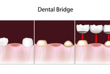 Tooth Extractions Bowie MD / Tooth Extractions, Bowie MD tooth extraction, teeth extractions, wisdom tooth extraction, wisdom teeth, pull teeth Bowie MD, tooth removal surgery,Dental and Oral Surgery, Dental Services,Oral Health Service,Wisdom Teeth Removal, Tooth Extraction Services