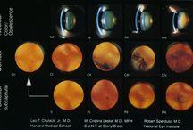 cataracta studiu Aquinox