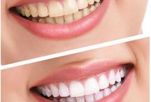 Teeth Whitening / Are your teeth becoming discolored? Then take help of professional teeth whitening treatments to improve your teeth appearance.