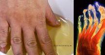cura artrite