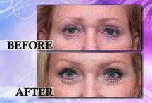 UltraLift™ / Ultraääni kohottaa ja kiinteyttää ihon. Ei-kirurginen vaihtoehto kasvojenkohotukselle.