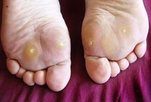 Warts / All different kinds of warts. They can develop everywhere on your body.