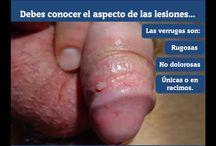 Vph (Verrugas genitales) / Todo lo que debes saber sobre la infección por el Vph
