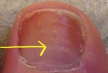 Toes & Toenails / There's no FUN in fungus and ingrown toenails can ruin your day. Get the facts!