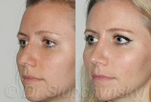 Female Open Rhinoplasty / When it comes to female Facial Plastic Surgery procedures, it is important that the surgeon understands the unique characteristics of each woman's face, so that he can produce their desired results, without negatively impacting the proportionality of their features.