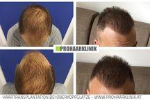 Haartransplantation Vorher Nachher / Haartransplantation Vorher Nachher Fotos  http://www.prohaarklinik.at/haartransplantation-vorher-nachher-bilder/