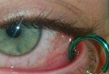 painful pictures of eyes