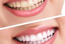 Teeth Whitening / Teeth Whitening, Teeth whitening products, Types if teeth whitening