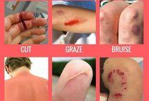 Injures