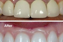 Cosmetic Dentistry in Delhi / Going to the cosmetic dentistry clinic in Delhi is beneficial for people, as our dentists are trained in various kinds of treatment procedures and believe in non-invasive methods to improve the overall smile and appearance. These procedures of cosmetic dentistry are carried out keeping in mind long term benefits and health of the teeth... http://www.dentalimplantsclinicindia.com/