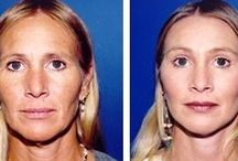 Puff Out Skeletal Cheeks With Cheek Plumping Exercises