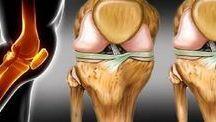 recuperar a cartilagem