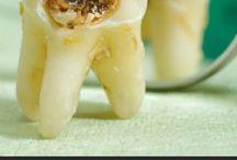 Dental  and  Gum  Care