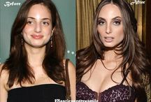 Celebrity Before and After / celebrity plastic surgery before and after