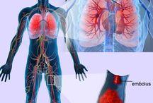 Complicaciones: Embolia Pulmonar
