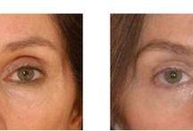 Acide hyaluronique pour traiter le regard, les paupières et les poches / L'acide hyaluronique est dans certains cas une alternative à la chirurgie pour traiter le regard. L'acide hyaluronique permet de traiter les poches, les yeux creux, de remonter un sourcil tombant ou remplir une région temporale creuse.