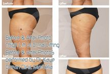 Thigh Lift or Crural Lifting / Thigh Lift or Crural Lift is a cosmetic surgery procedure designed to tighten the skin of the thigh and reduce sagging in the inner or outer thigh.Thigh Lift achieves great before and after changes.