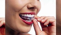 Invisalign & Orthodontics / Straight teeth help an individual to effectively bite, chew and speak. Straight teeth contribute to healthy teeth and gums.