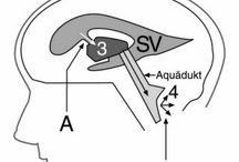 Ped Neurosurgery hydrocephalus