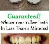 tanden wit