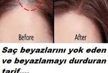 Beyaz saç çözümü
