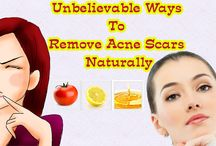 Remove Acne Scars Naturally / If you bothered by acne scars problems then visit this post because in this post we share some Unbelievable Ways To Remove Acne Scars Naturally.....