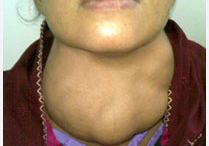 Thyroid Treatment in Kolkata