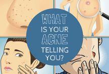 Acne & Skin Care Tips