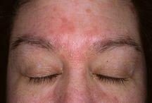 Bőrelszíneződésre
