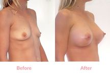 Dual Plane Placement Silicone Breast Implants (before & afters) / These are partly 'under the breast' & partly 'under the muscle').  Dual Plane Placement is preferred in cases where there is mild sagging of the breasts. #breastaugmentation #breastimplants