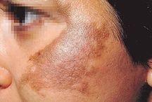 Mancha da pele