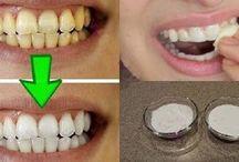 Branqueamento de dentes
