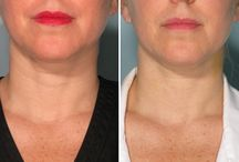 """Botox/Fillers / Dr. Jegasothy's light injection technique and skill can give you the natural, """"ageless"""" look you've always wanted using Botox Cosmetic®, Juvederm®, Restylane®, Perlane®, Voluma®, Dysport®, Xeomin®, Sculptra®, or Radiesse®. Call today and see how we can help you! 305-569-0067"""