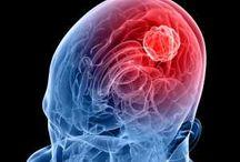 Brain Cancer / All about brain cancer, brain cancer symptoms, brain cancer causes, brain cancer treatments