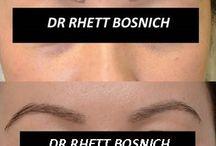 eyebrow transplant / Eyebrow transplant photos and information