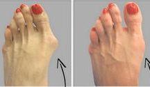feet  remedies