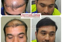 Best Hair Loss Treatment in South Delhi