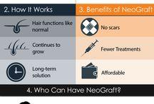 Hair Restoration via NeoGraft / Hair Restoration with a no scar hair transplant called NeoGraft!