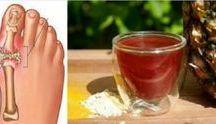 curar acido urico