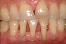Все о зубах