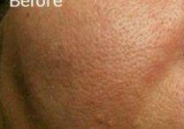 remedios rostro