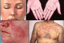obat tradisional lupus