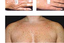 Photo Rejuvenation / Pigmentation, Fine lines, Redness, Capillaries, Spider Veins, Anti Aging