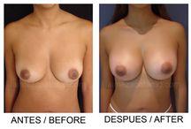 Aumento de Senos - Mamoplastia / El aumento de senos o mamoplastia de aumento es una cirugía dedicada a mejorar la forma y el tamaño de los senos. Este procedimiento requiere de un implante o prótesis que ayude a proyectar y a dar el volumen deseado.