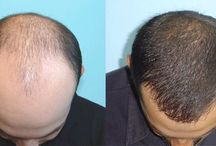 Hair transplant / Hair replacement techniques: hair implantas with FUE, SHE