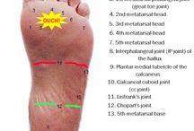 bruised sole over metatarsal/anaemia